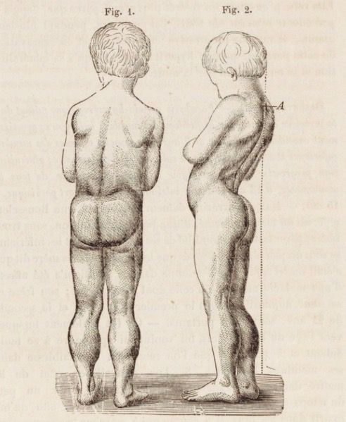 Drawing of boy with Duchenne muscular dystrophyDrawing of boy with Duchenne muscular dystrophy