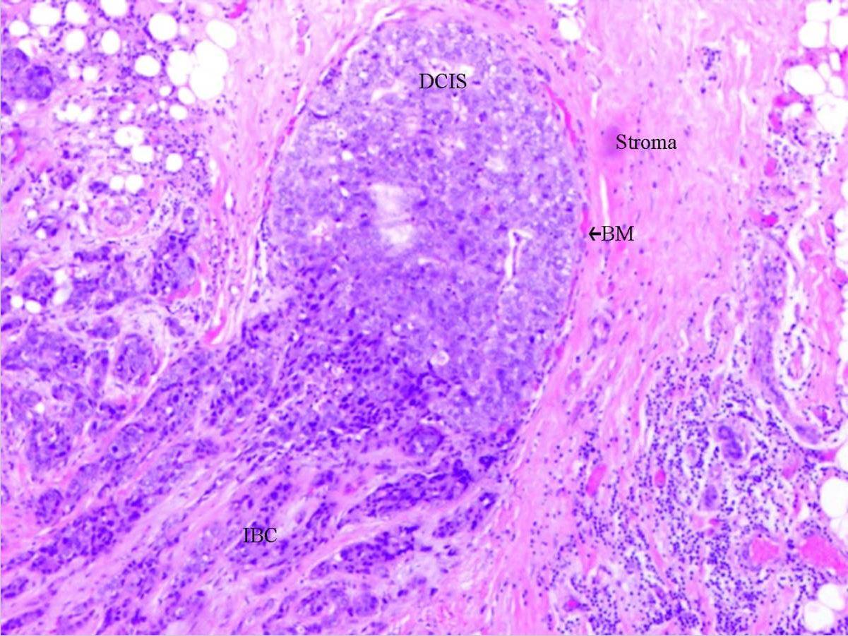 Ductal carcinoma in situ