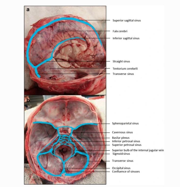 Dural venous sinuses