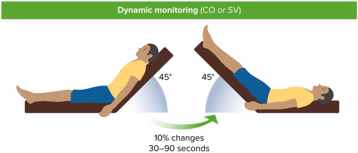 Dynamic monitoring (CO or SV)