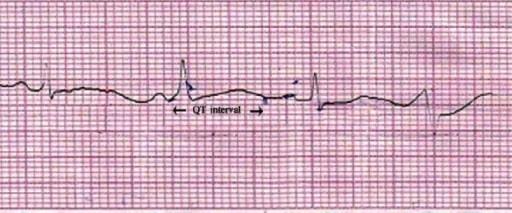 ECG QT prolongation