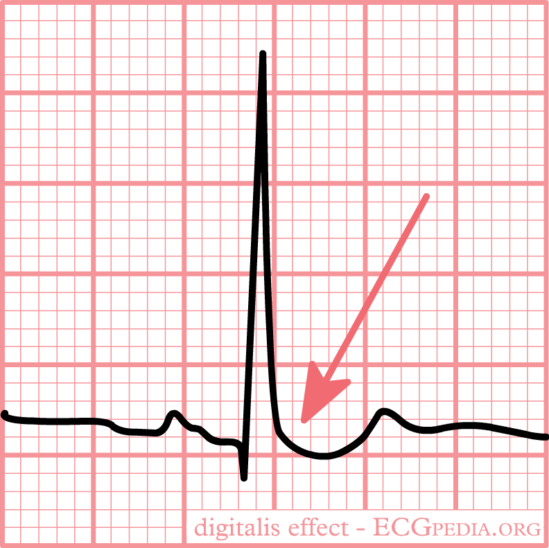 """ECG Typical """"scooped"""" ST-depression resulting from digoxin use"""