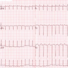 ECG atrial fribrillation