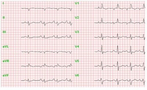 ECG of patient with pulmonary hypertension