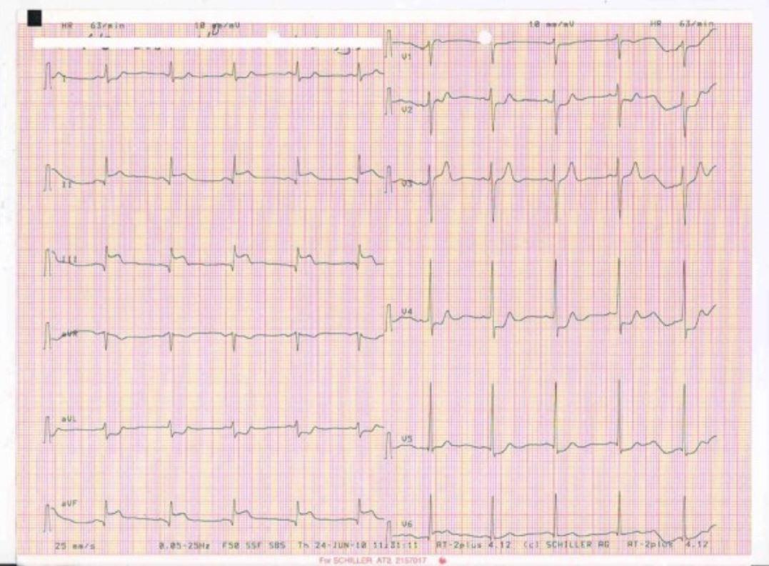 ECG showing an inferior wall myocardial infarction