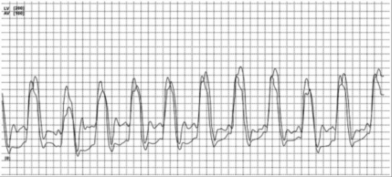 ECG showing restrictive cardiomyopathy