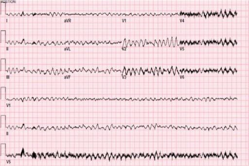 ECG ventricular fibrillation