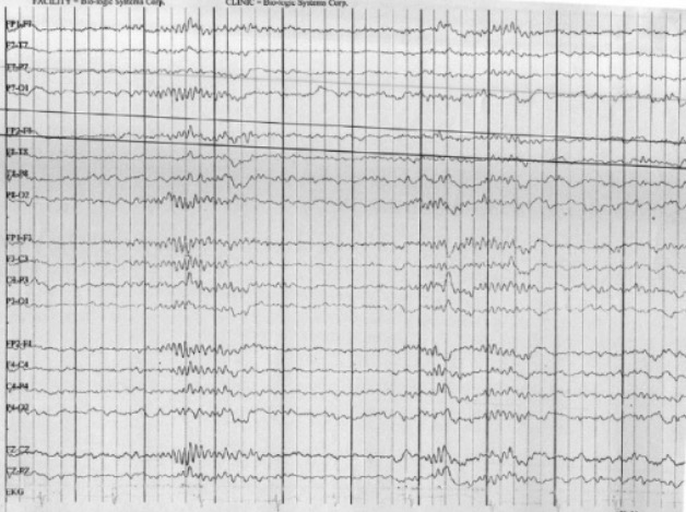 EEG of a child with Lennox–Gastaut Syndrome