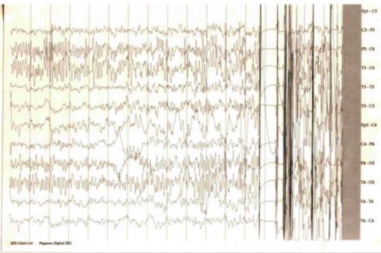 EEG showing interictal spikes and polyspikes - tonic clonic seizure