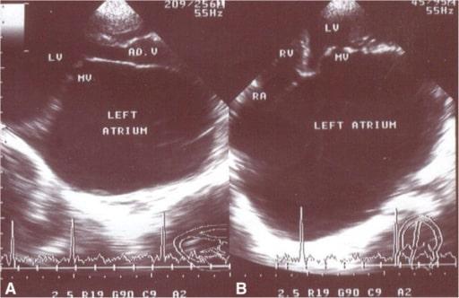 Echocardiogram mitral stenosis