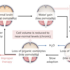 Effects of hyponatremia on the brain