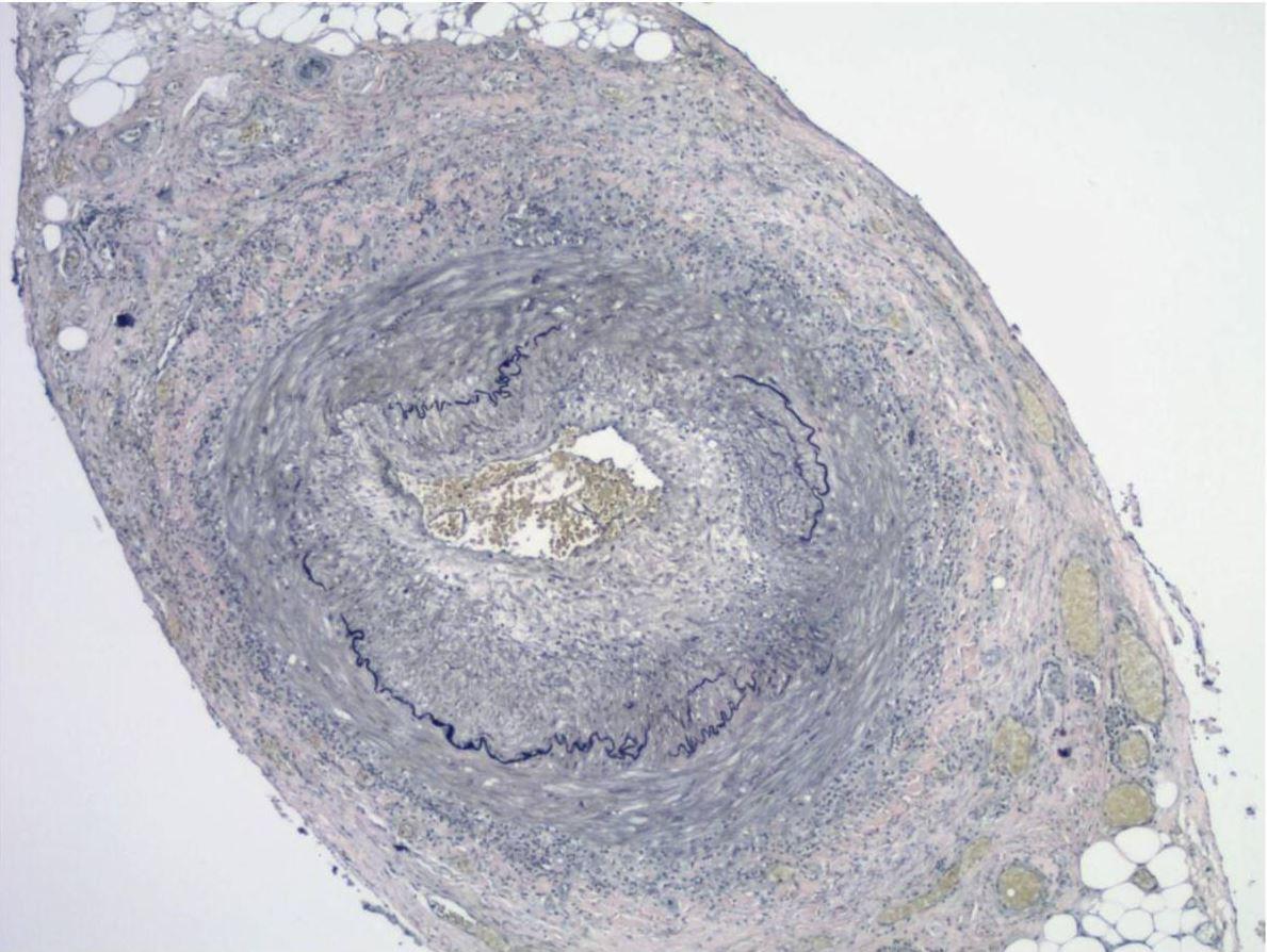 Elastic stains Giant cell arteritis