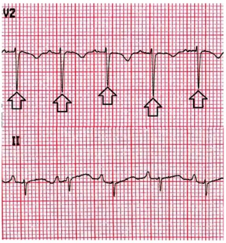 Electrical alternans pericardial effusion