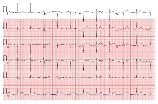 Electrocardiogram showing atrioventricular dissociation