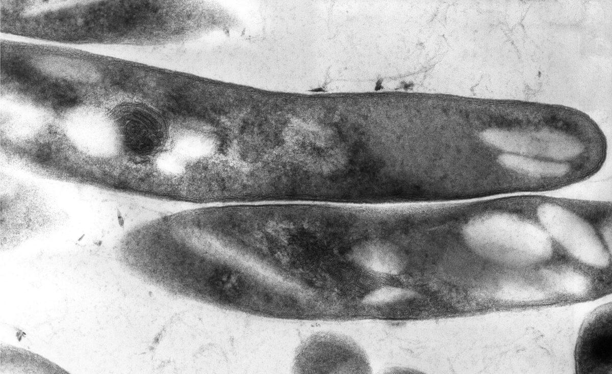Electron micrograph of M. tuberculosis