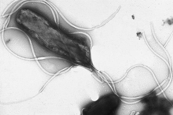 Electron micrograph of helicobacter pylori