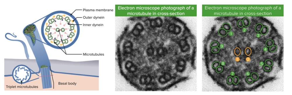 Electron microscope photograph of the ciliary structure in the bronchiole annotated