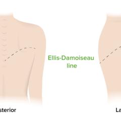 Ellis–Damoiseau line