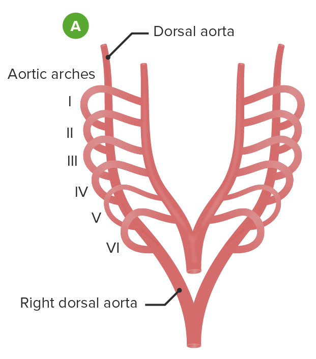 Embryological formation of the aortic arch