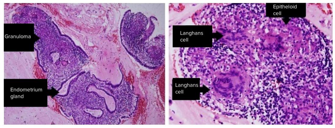 Endometrium prior to administration of anti-tuberculosis drugs - endometritis