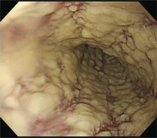 Epigastric Distress Caused by Esophageal Candidiasis