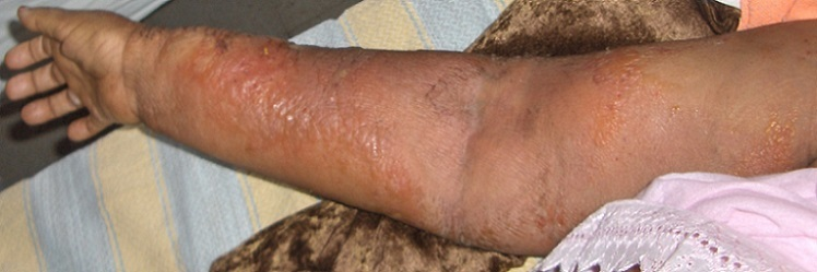 Erysipelas associated with the lymphedema or the upper extremity