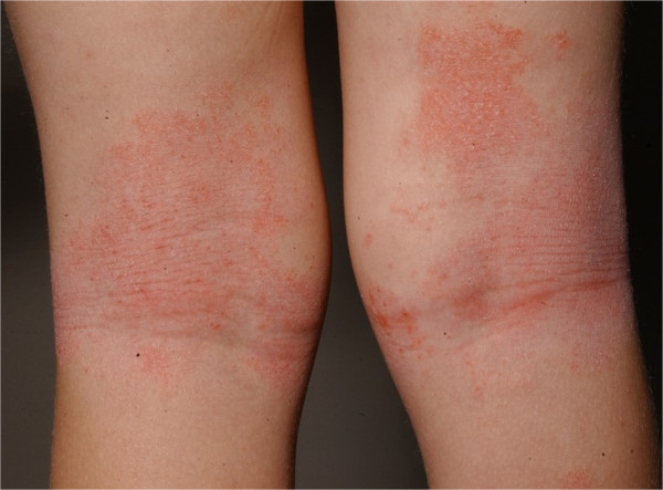 Erythema and lichenification in the kneefolds of a patient with atopic dermatitis