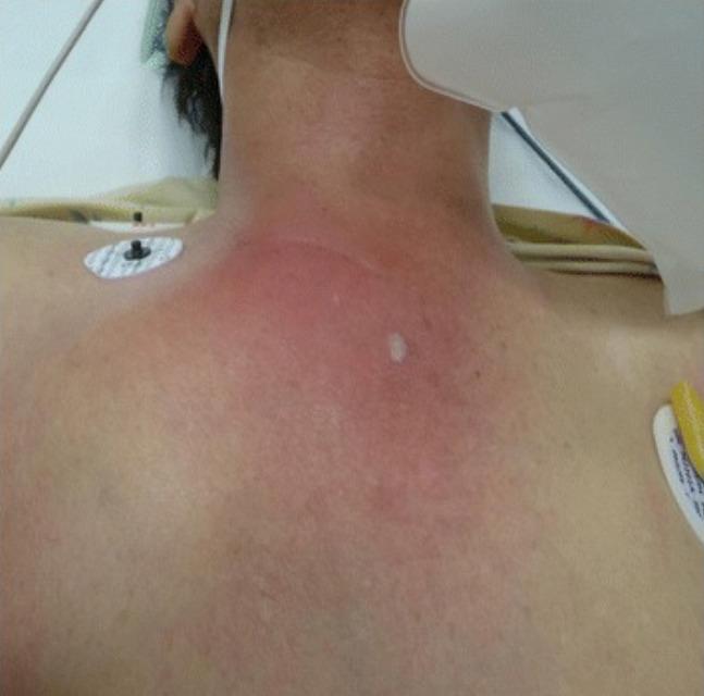 Erythema in case of septic arthritis