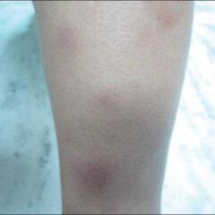Erythema nodosum - atypical presentation