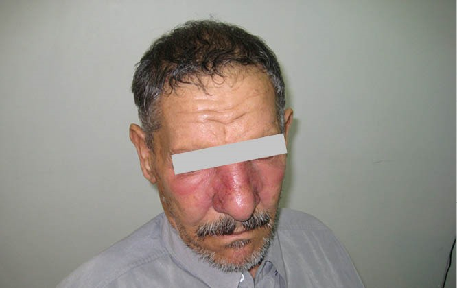Erythematous and edematous plaque covering the cheeks and nose