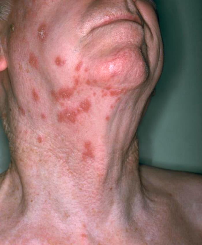 Erythematous rash due to shingles Herpes zoster