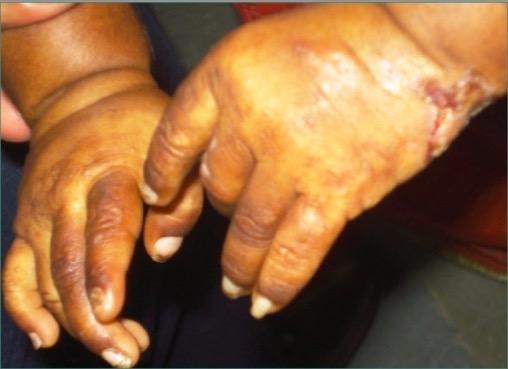 Erythrodontia in congenital erythropoietic porphyria