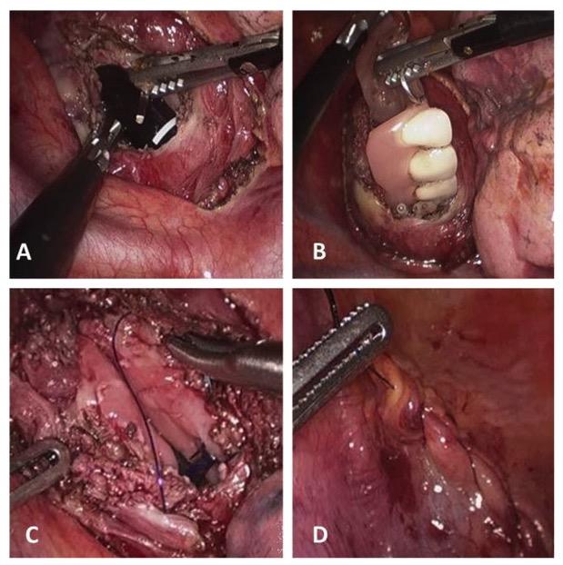 Esophagotomy