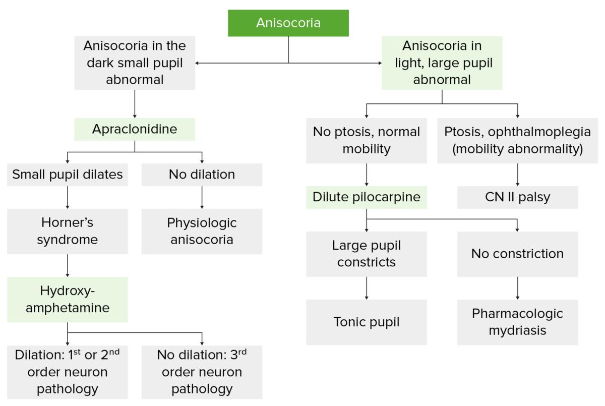 Evaluation of anisocoria