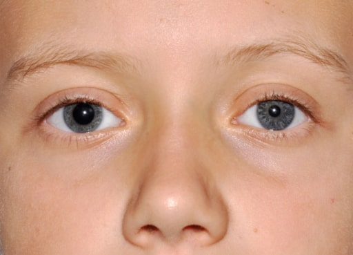 Evident right mydriasis