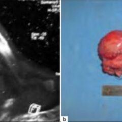Ewing sarcoma surgery