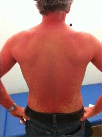 Exacerbated psoriasis on back