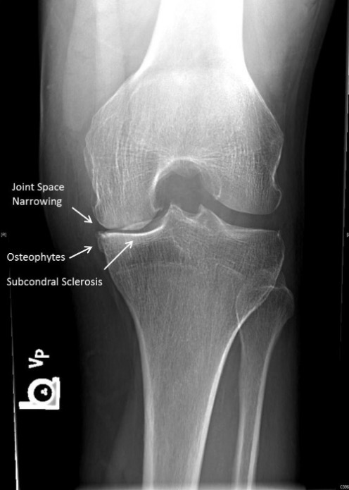 Examples of JSN, osteophytes, and subchondral sclerosis