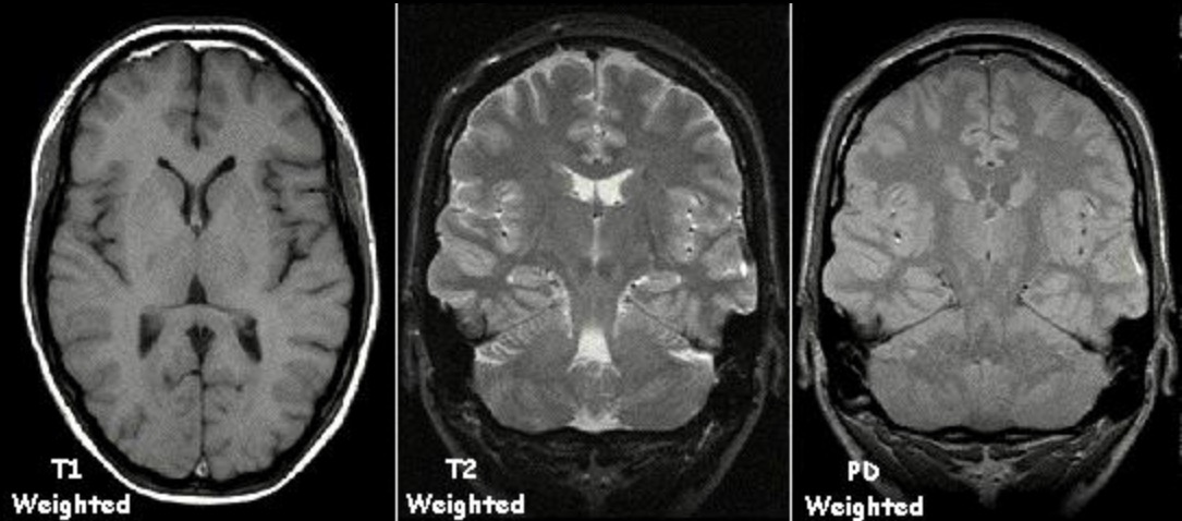 Examples of T1-weighted, T2-weighted, and PD-weighted MRI scans