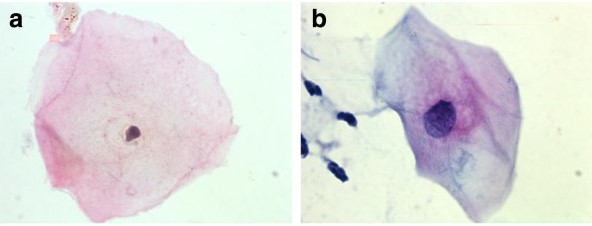 Examples of squamous cell findings from cervical cytology (a) (b)