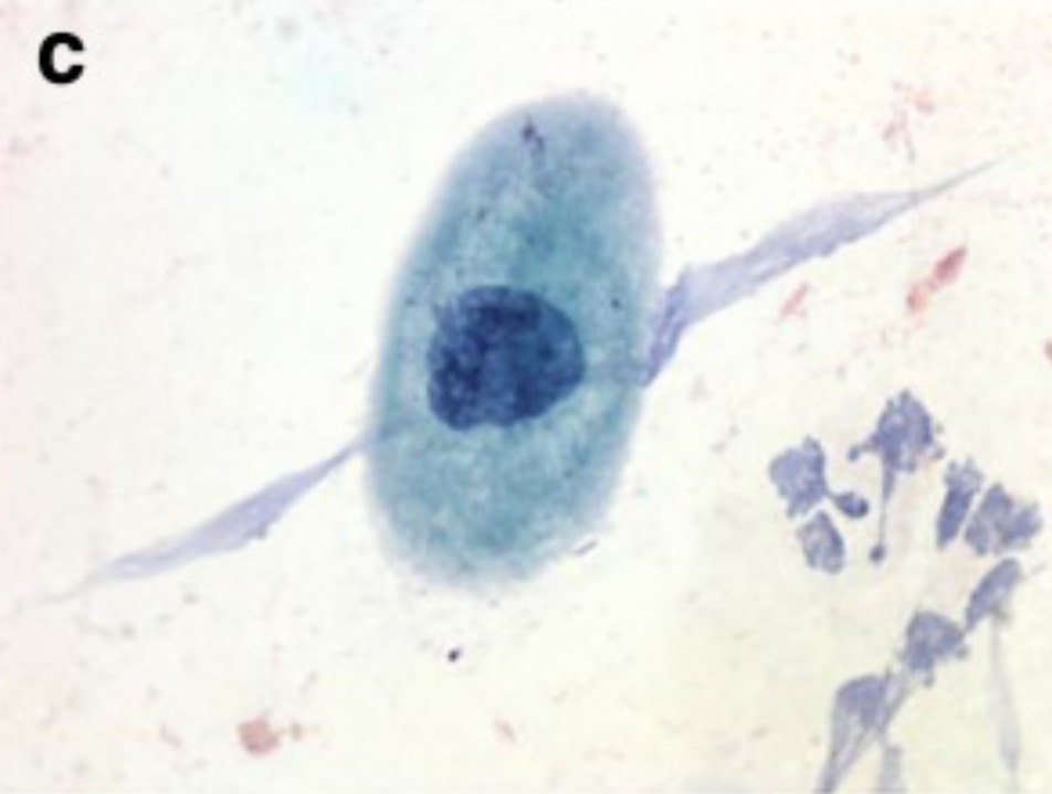 Examples of squamous cell findings from cervical cytology (c)