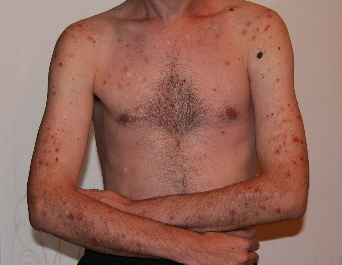 Excoriation disorder secondary to skin picking