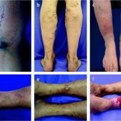Exemplary photographs for a spectrum of clinical manifestations of chronic venous disease