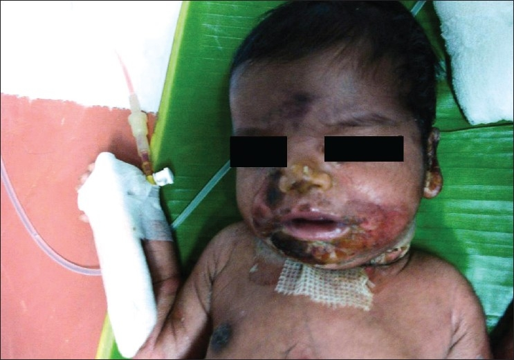 Face crusting in staphylococcal scalded skin syndrome