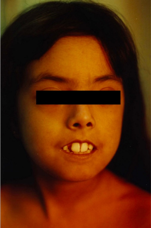 Face of a 9-year old with scleroderma