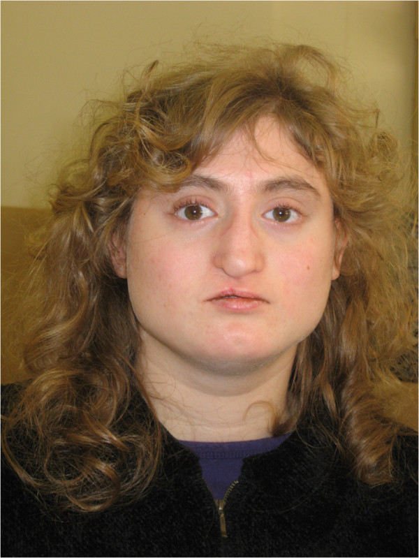 Facial appearance diGeorge syndrome