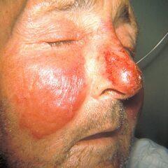 Facial erysipelas