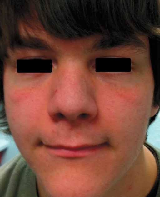 Facial features in AD-HIES
