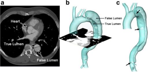 False versus true lumen in aortic dissection