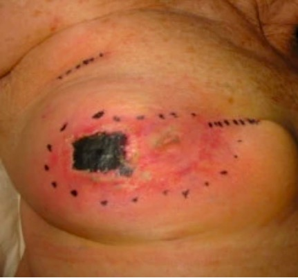 Fat necrosis of the right breast